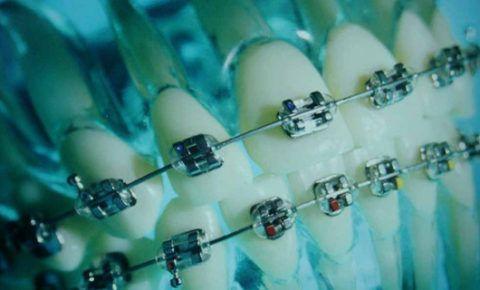 Ортодонтическое лечение при пародонтите с использованием эджуайс-техники (системы брекетов)