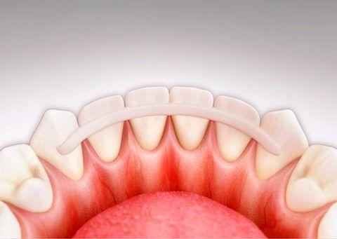 Схема расположение шинирующей дуги на язычной поверхности зубов