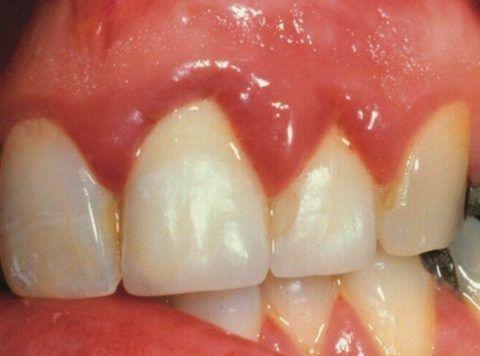 Фото: воспаление десен в области резцов верхней челюсти