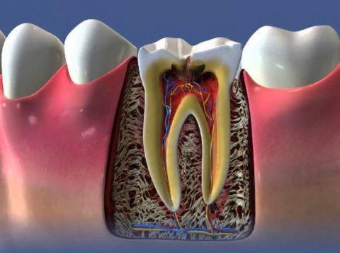 Пульпит большого коренного зуба
