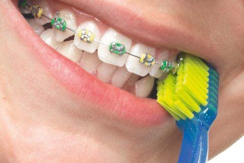 Чистка брекет-системы и зубов специальной щеткой