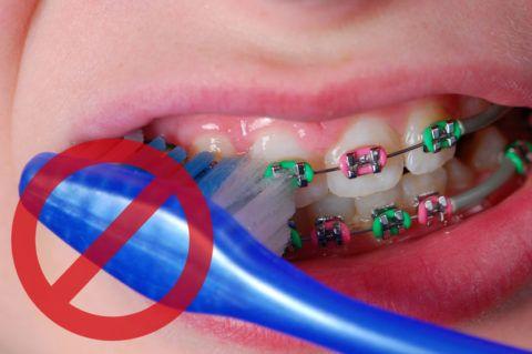 Не используйте обычную зубную щетку для чистки брекет-систем