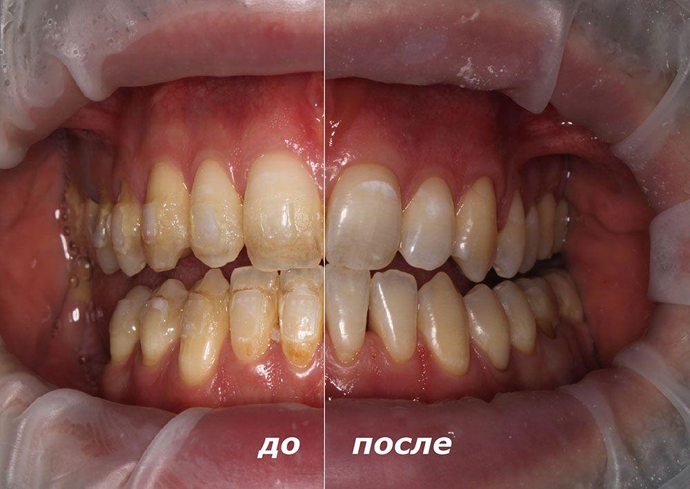Зубы после брекетов до и после профессиональной чистки