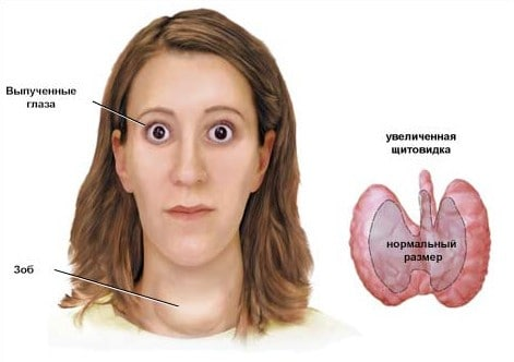 Дефицит йода в организме может привести к тяжелым последствиям. Например, к Базедовой болезни (как на фото).