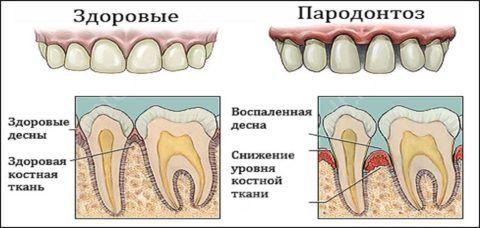 Пример здоровых и больных зубов