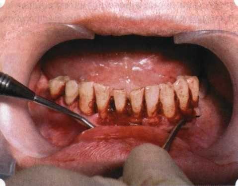 Для лечения могут применяться хирургические методы