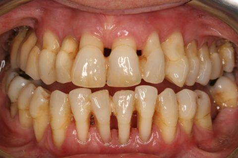 Оголенные корни зуба, стадия запущенная