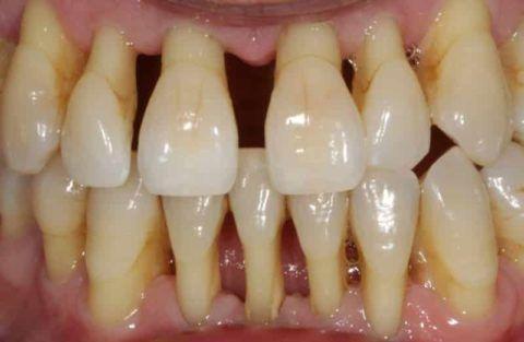 Щели между зубами становятся очень большими