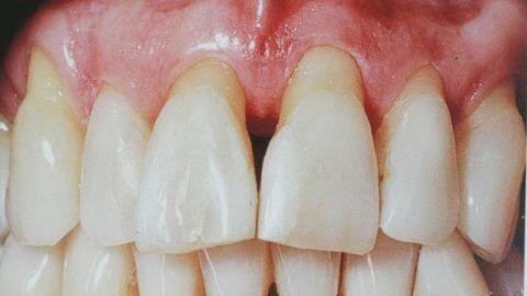 Пример оголения шейки зубов
