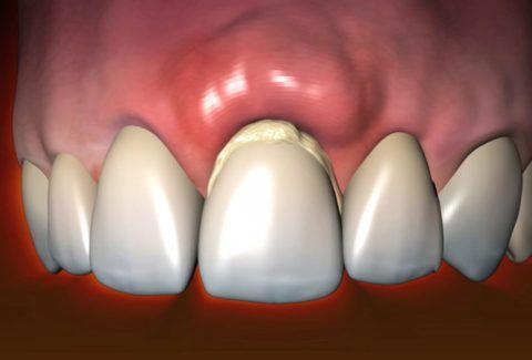 Зубной камень нередко является причиной воспаления десен
